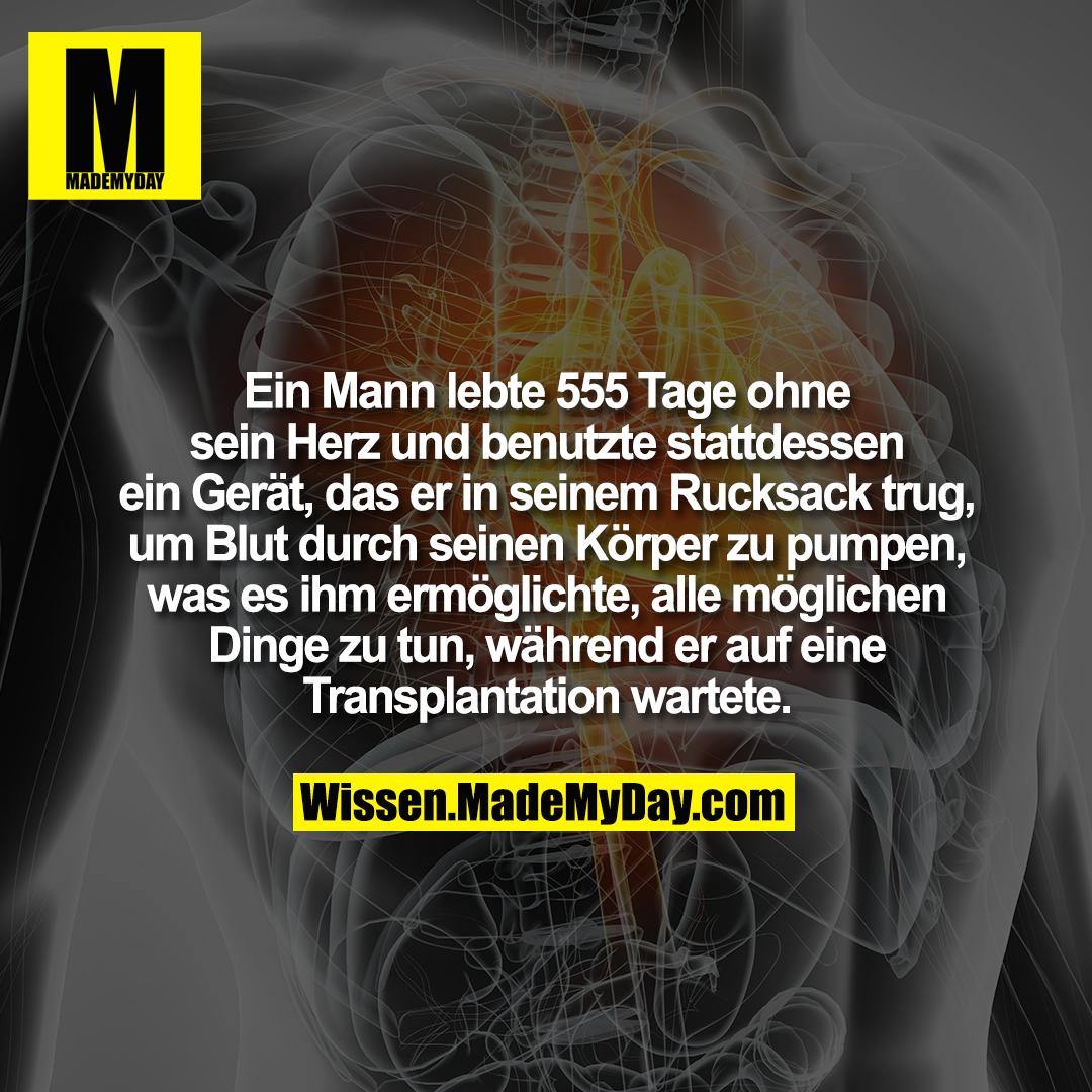 Ein Mann lebte 555 Tage ohne sein Herz und benutzte stattdessen ein Gerät, das er in seinem Rucksack trug, um Blut durch seinen Körper zu pumpen, was es ihm ermöglichte, alle möglichen Dinge zu tun, während er auf eine Transplantation wartete.