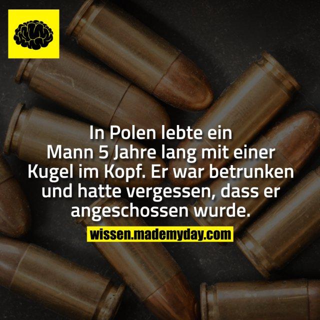 In Polen lebte ein Mann 5 Jahre lang mit einer Kugel im Kopf. Er war betrunken und hatte vergessen, dass er angeschossen wurde.