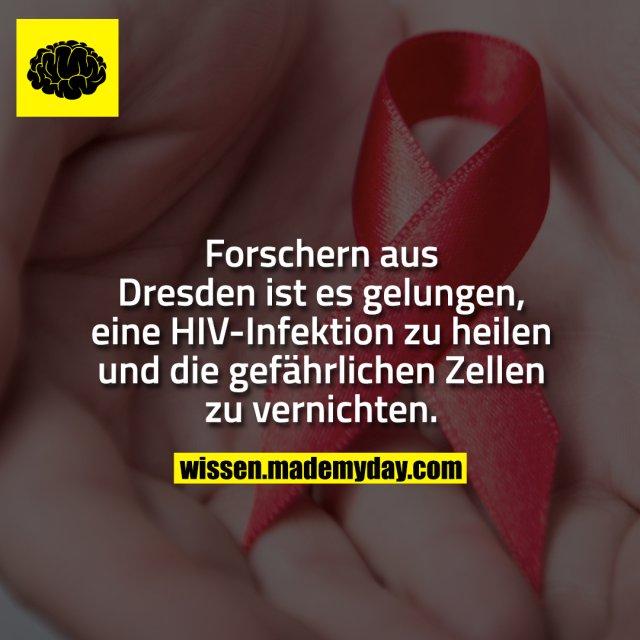 Forschern aus Dresden ist es gelungen, eine HIV-Infektion zu heilen und die gefährlichen Zellen zu vernichten.